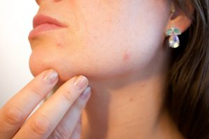 acne, pores, skin-1606765.jpg