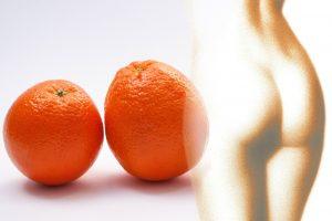 orange peel, cellulite, orange-273151.jpg